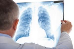 Arzt Lungenbild