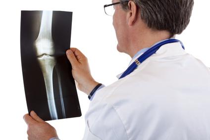 Welche Ursachen hat ein Knocheninfarkt?