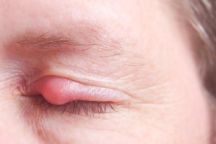 Gerstenkorn Auge