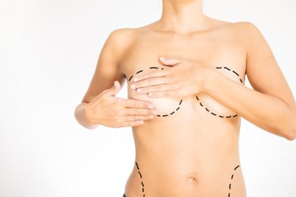 Brust-OP: Worauf man bei Wahl des Arztes achten sollte